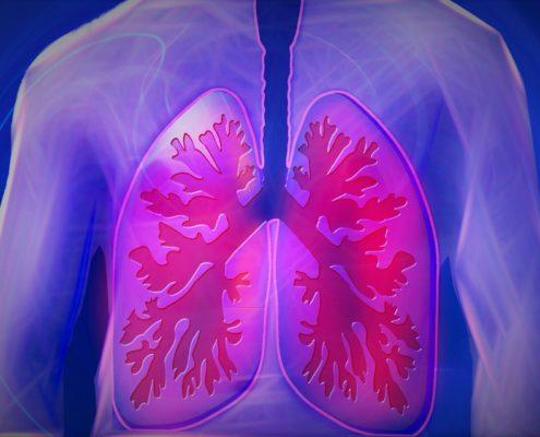 Ist Lungenkrebs heilbar - gesunde Ernaehrung mit Rohkost froh-leben